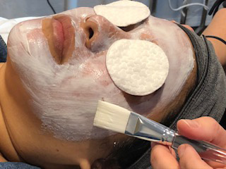 Tacoma Facials, Microdermabrasion and Dermaplaning